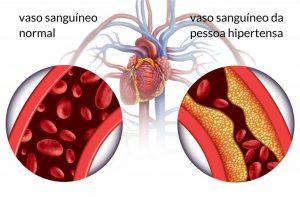 Hipertensão arterial - doenças cardiovasculares