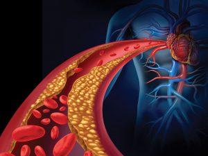 Colesterol - doenças cardiovasculares